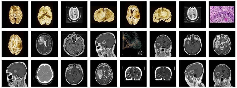24 images and scans of different glioblastoma tumors